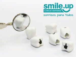 cáries-dentárias