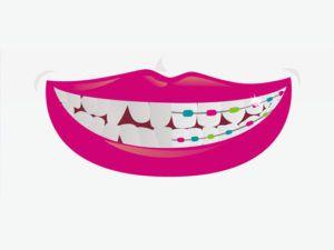 Vantagens do aparelho dentário