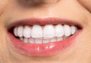 invisalign-smile-up-ortodontia-invisivel