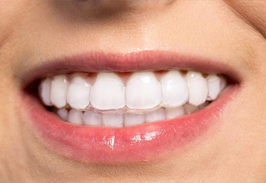 Invisalign, aparelhos dentários invisíveis