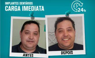 Implantes dentários com carga imediata: o antes e depois