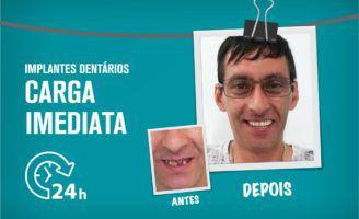 Implantes com Carga Imediata, novo sorriso no próprio dia