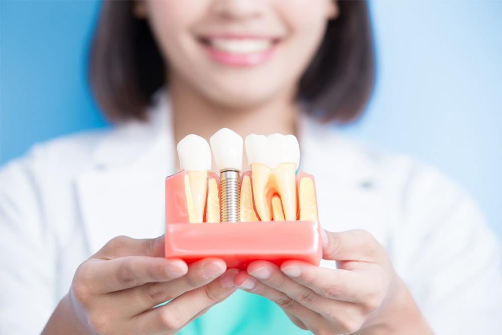 Implantes dentários: O que são e como funcionam