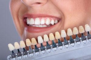 Cuidados para quem tem implantes dentários