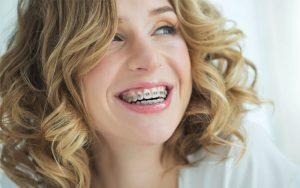5 dúvidas antes de colocar aparelho dentário