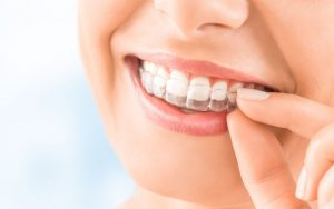 Invisalign: Como tratar do aparelho dentário invisível em casa