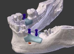 Tem falta de osso e quer colocar implantes dentários?