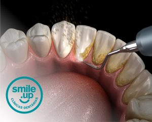 tartaro-dentario-smile-up