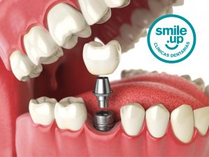 implante-dentario-smile-up