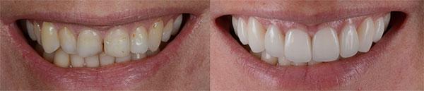 Facetas dentárias - antes e depois