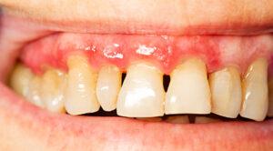 As doenças periodontais afetam as nossas gengivas e podem dividir-se em gengivite e periodontite. Conheça as principais diferenças.