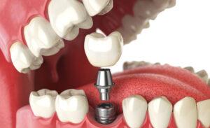 Implantes dentários – O que são e etapas do tratamento