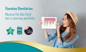 Facetas dentárias melhoram a beleza do sorriso