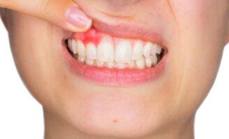 Gengivite e periodontite - qual a diferença?