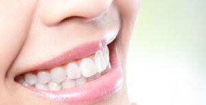 Smile.up - Oclusão (Má oclusão causa problemas nas articulações temporomandibulares)