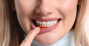 Peridontite ou doença gengival – causas, sintomas e tratamento