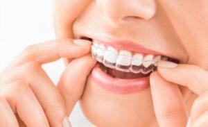 5 vantagens do aparelho dentário invisível