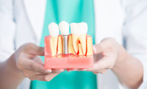 Perda de implante dentário: causas e sintomas