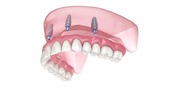 Implantes dentários com carga imediata (tratamento All-On-4) devolvem o sorriso no próprio dia