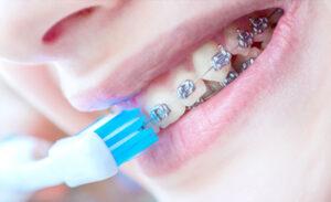 Aparelho dentário autoligável – o que é e vantagens