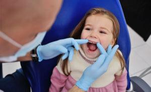 Cáries nos dentes de leite podem afetar os dentes definitivos