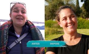 Susana Sousa - Sorrisos Felizes e Contagiantes - Antes e Depois