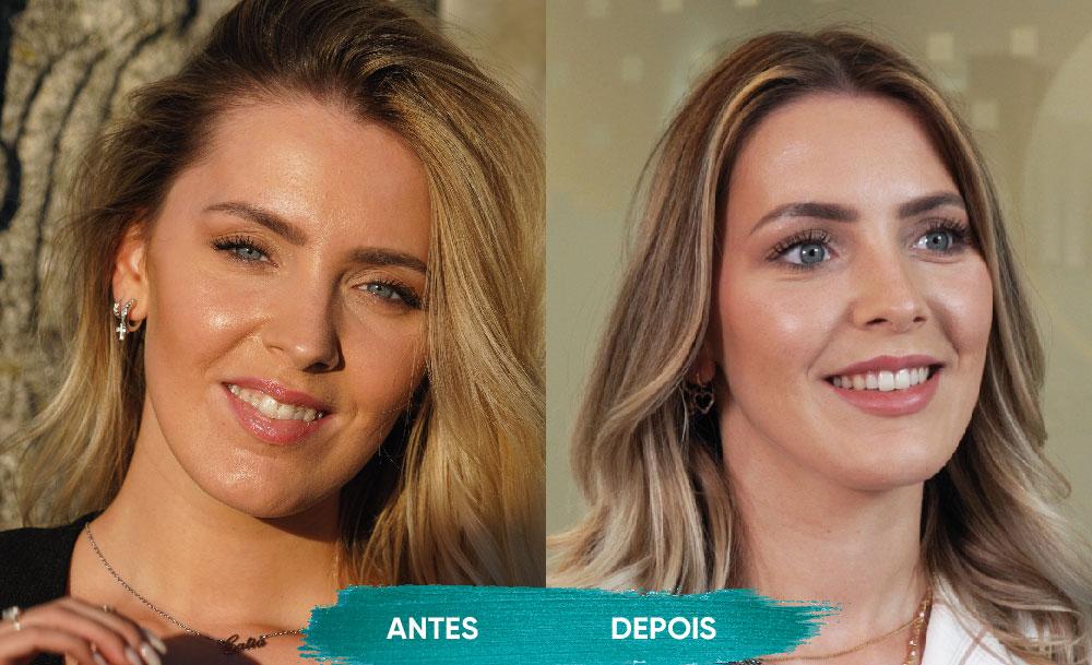 Invisalign - O antes e depois do sorriso de Cátia Cunha